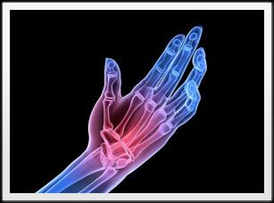 Rheumatoid Arthritis pain symptoms