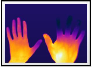 Raynaud's Phenomenon, Raynaud's Syndrome, Raynaud's Disease treatment